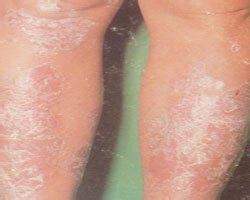牛皮癣有哪些感染途径